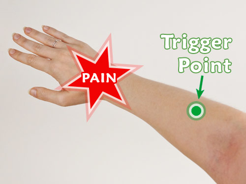 Treating hand and wrist pain with trigger point pressure therapy on the upper forearm